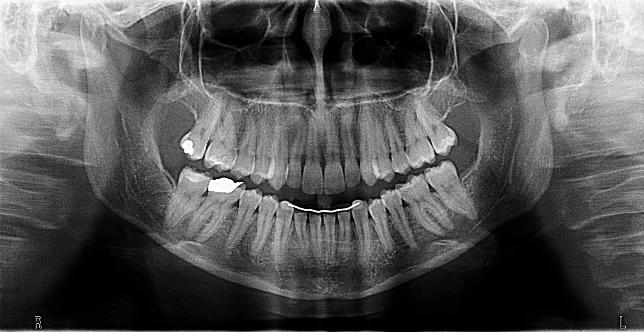 The Purpose Of Dental X